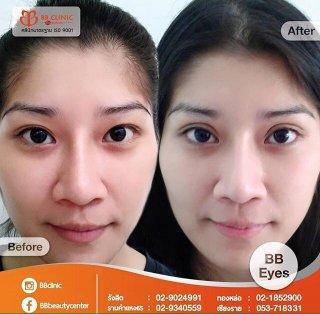 ศัลยกรรมทำตา 2 ชั้น bb clinic