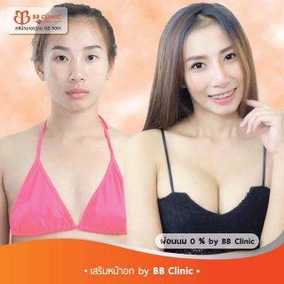 ราคาเสริมหน้าอก bb clinic 0653545163